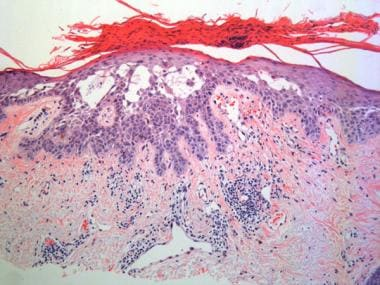 Acantholysis is present in this actinic keratosis.