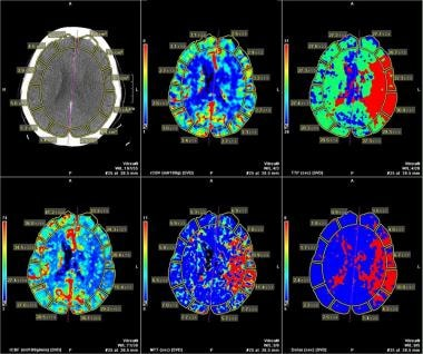 Stroke Imaging: Practice Essentials, Computed Tomography, Magnetic