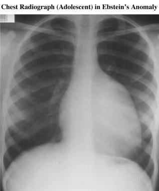 The chest radiograph shows classic radiographic fe