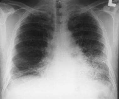 Asbestosis. Posteroanterior chest radiograph in a