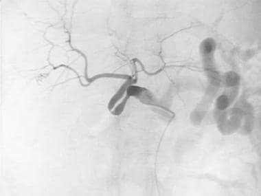 Digital subtraction angiogram depicts redundant do
