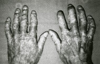 Dorsal view of the hands shows psoriatic rash and