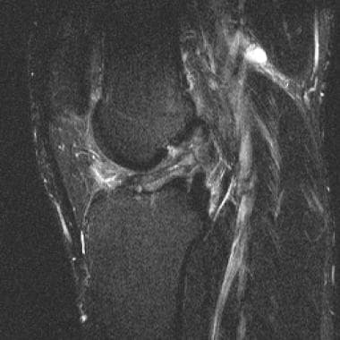 Partial ACL tear. T2 sagittal image shows attenuat