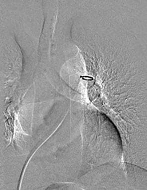 Digital subtraction angiography image shows the pi