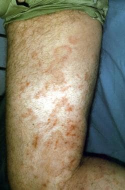 Erythema multiforme. Courtesy of Walter Reed Army