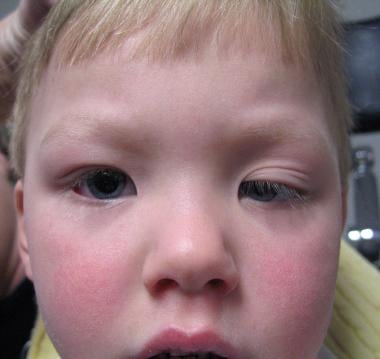 Congenital ptosis of the left eye partially obstru