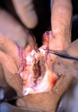 The deep transverse metacarpal ligaments are ident