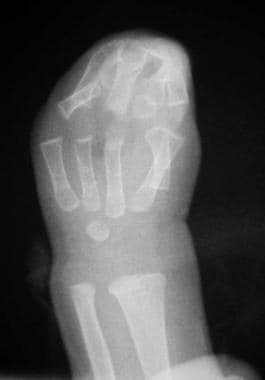 Radiograph of left hand of patient with type III A
