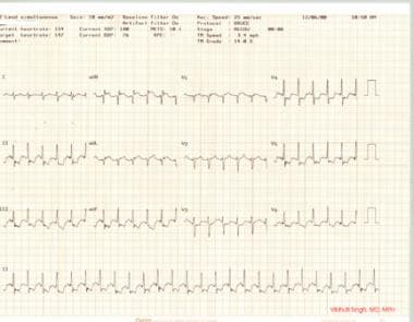 Stress test, part 2. Stress ECG showing significan