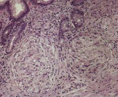 Chronic Gastritis: Background, Pathophysiology, Etiology