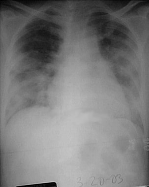 Chest radiograph of a 52-year-old symptomatic woma