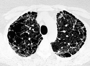 A CT scan image from a 59-year-old woman shows adv