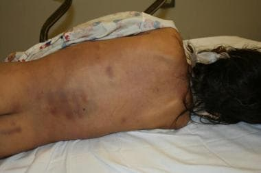 Pattern bruising and extensive back bruising. The