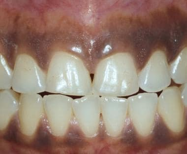 Persons of color frequently have intraoral pigment