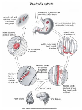 Life cycle of Trichinella in humans. Courtesy of D