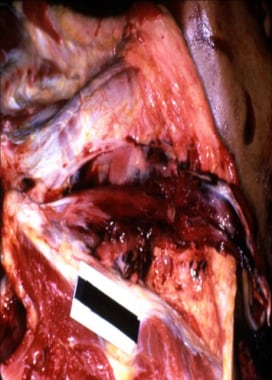 Layer-by-layer anterior neck dissection demonstrat