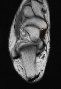 Ankle, tibialis posterior tendon injuries. MRI T1-