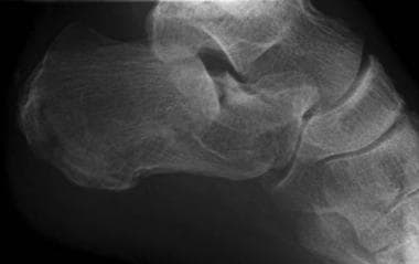 Calcaneus, fractures. Plain radiographs and CT sca