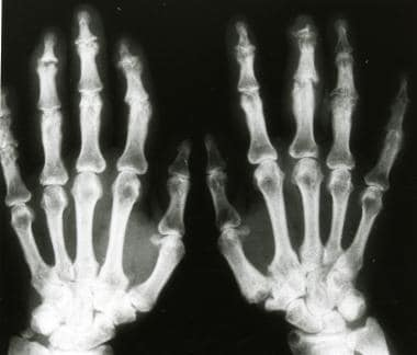 Anteroposterior radiograph of the hands shows subc