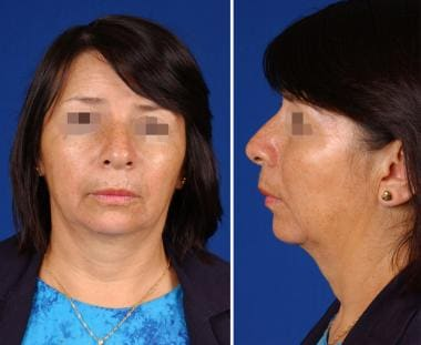 A Patient with aging of the lower face. In additio