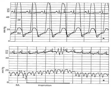 Hemodynamic monitoring can confirm the diagnosis o