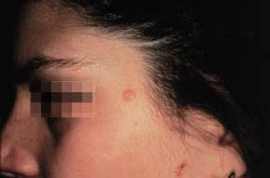 Clinical appearance of trichofolliculoma.