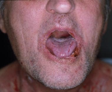 Oral manifestations, including blisters, hemorrhag