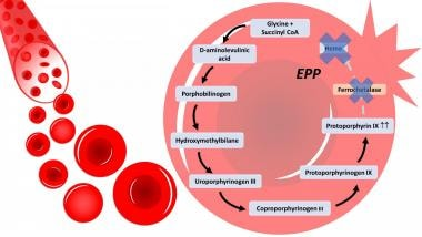 In erythropoietic protoporphyria (EPP), there is a