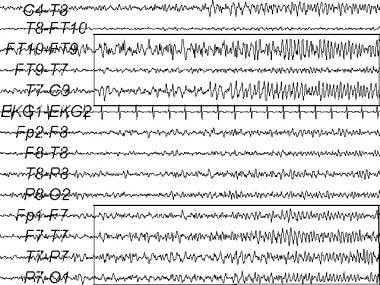An electroencephalogram (EEG) recording of a tempo