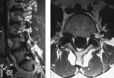Lateral and axial magnetic resonance imaging (MRI)