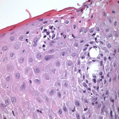 Mycosis fungoides with an epidermal nest of large,