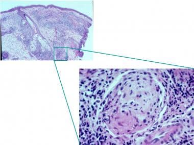 Histopathology of leprosy: Large numbers of acid-f