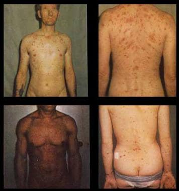 Syphilis. These photographs show the disseminated