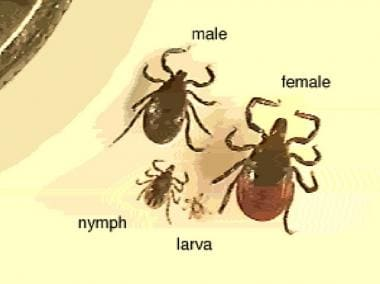 Magnified ticks at various stages of development.