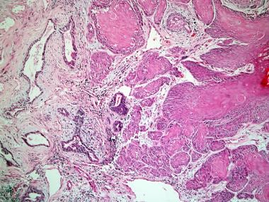 Squamous cell carcinoma of the prostate.