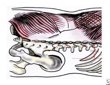 Surface technique of lumbar sympathetic block. See