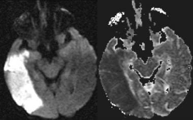 Magnetic resonance imaging in acute stroke. Left:
