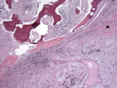 Photomicrograph demonstrates heterologous bone for