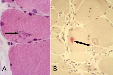 Inclusion body myositis, eosinophilic inclusions.