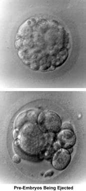 Infertility. Preembryos being ejected. Image court