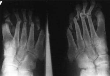 Anteroposterior radiograph of the feet shows arthr