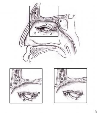 (A) Frontal sinus, (B) sphenoid sinus, (C) cut sur