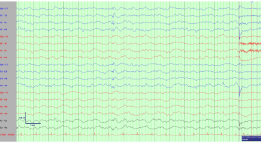 Electroencephalogram demonstrating interictal patt
