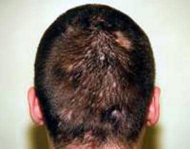 A white patient with painful nodules after 3 month