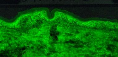 Direct immunofluorescence microscopy performed on