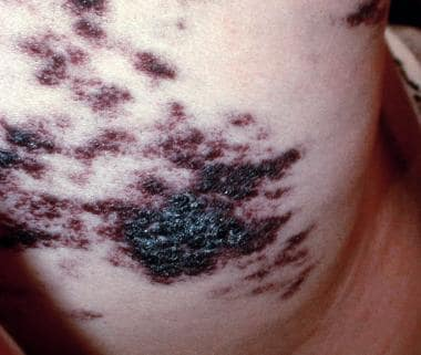 Cutaneous vascular lesions. Courtesy of L. Cooke,