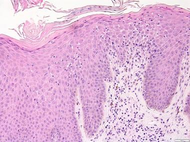 Infiltration of dermoepidermal junction by clonal