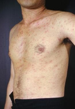 Pityriasis Rosea Clinical Presentation History Physical Examination