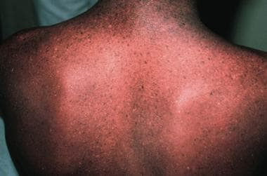 Back of an adolescent with xeroderma pigmentosum,