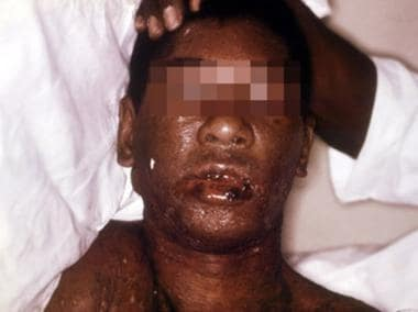 Erythema multiforme (Stevens-Johnson syndrome). Co